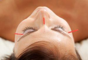 Facial rejuvenation Cosmetic Acupuncture